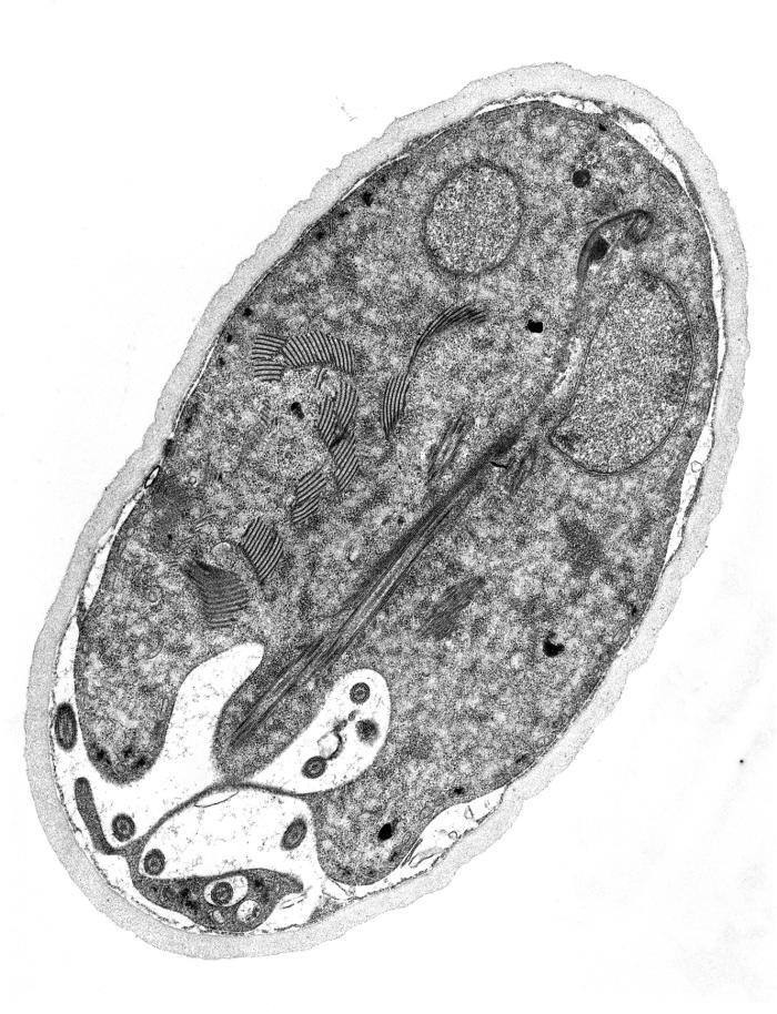 a giardiasis hepatobiliaris formája)