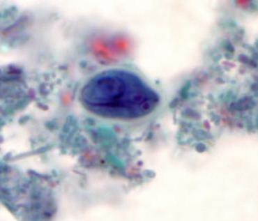 a giardiasis hepatobiliaris formája