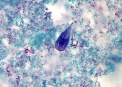 A giardiasis tüneteinek hepatobiliaris formája - 123arany.hu